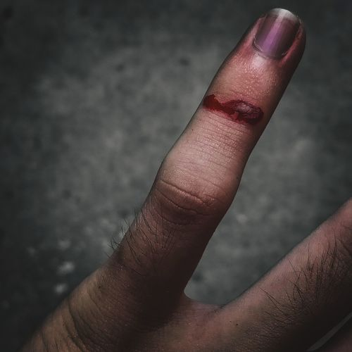 Cropped image of wounded finger outdoors