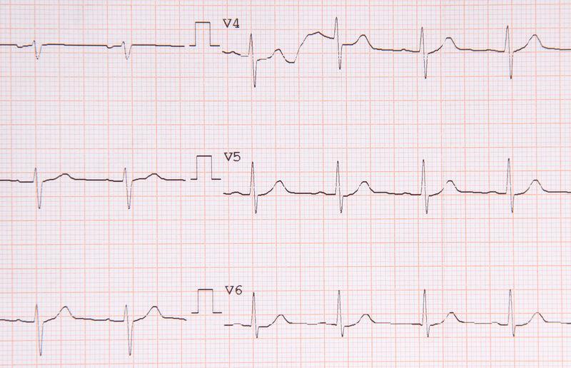 Electrocardiogram Diagnosis Electrocardiogram Graphic Heartbeat Medicine Pulse Rhythm Analysis Analyze Beat Cardiogram Cardiography Cardiology Chart Diagram Ekg Graph Health Healthcare And Medicine Heart Hospital Instrument Of Measurement Paper Pattern Pulse Trace