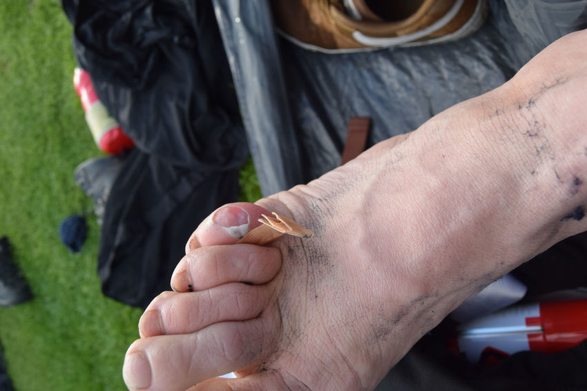Adult Band Aid Camping Close-up Day Foot Human Body Part Human Hand Men Outdoors People Plaster Real People Toes Togetherness Two People Walking Around Women