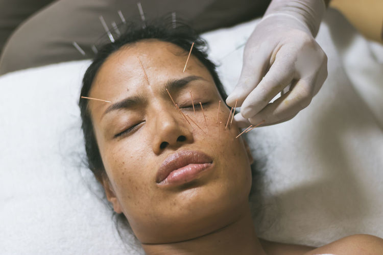 Therapist applying acupuncture needles on mature woman