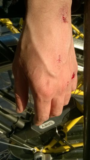 Bike Accident Bloody Hand Hurted Myself