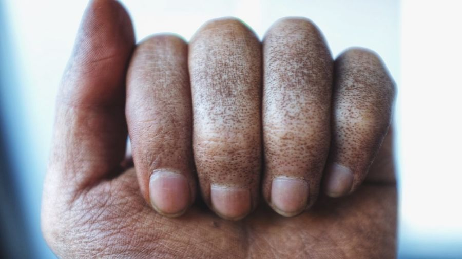 Close-up of hand with disease