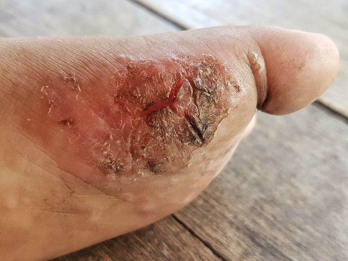 EyeEm Selects The wound forms scabs on foot. Human Body Part Close-up Lesion Wound Scab Health Healthcare Pain Hurt