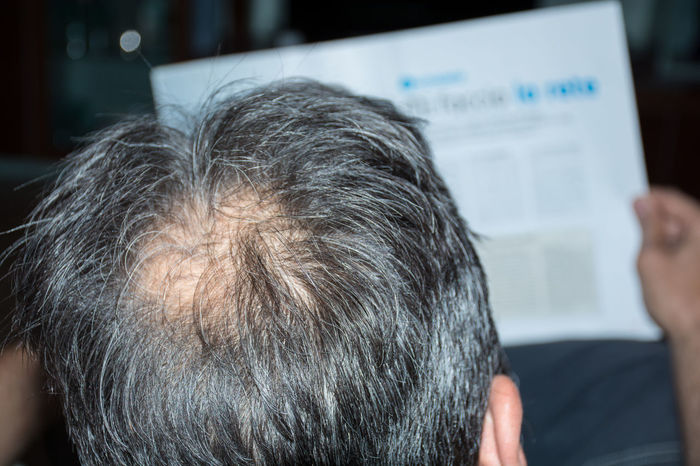 Adult Bald Bald Head Baldeneysee Baldhead Baldness Close-up Day Focus On Foreground Human Hand Indoors  Lifestyles Men One Person People Real People Rear View Sitting