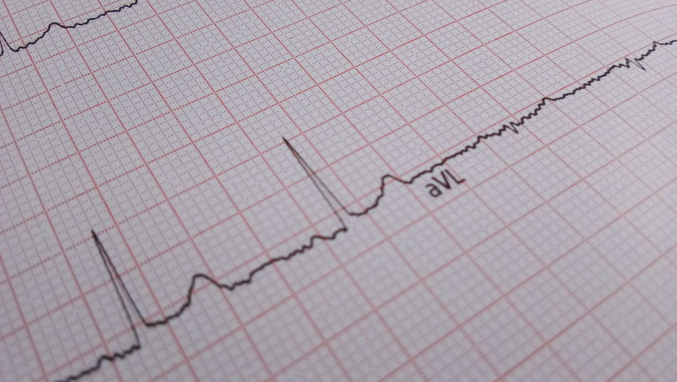 ECG Ekg Life Heart EyeEm Selects Love Graph Business Stock Market And Exchange Data Making Money Chart Pulse Trace Corporate Business Financial Figures Buying No People Close-up Paper Report Moving Up Success Research Line Graph Finance Growth Diagram Curve Backgrounds Information Medium
