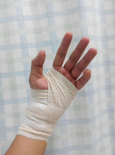 Bandage Care Close-up Doctor  Equipment Equipments Fractals Hand Hanging Out Hospital Human Finger Injured Left Medicine Opéra Pain Person Personal Perspective Silhouette Thumps Up Treatment Unrecognizable Person Wounded Writing On The Walls