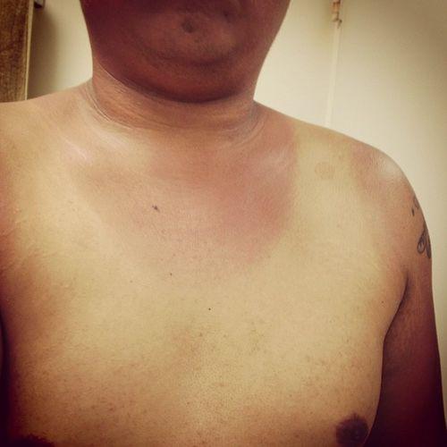 Damn!!!!!! My tanlines... I'm gonna hurt tomorrow..Sunburn Warriordash2014 Haadhead Nolisten
