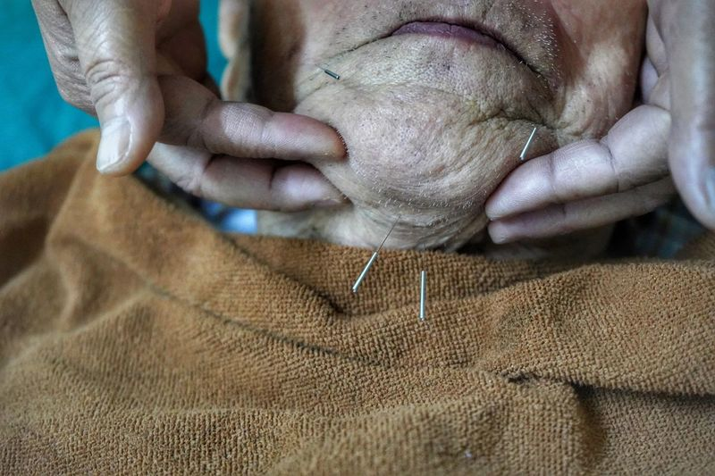 Acupuncture Acupuncture Human Body Part Human Hand Hand One Person Body Part Adult Human Finger Real People Senior Adult Midsection Women Lifestyles Wrinkled Finger Leisure Activity Nail Indoors  Close-up Textile Men