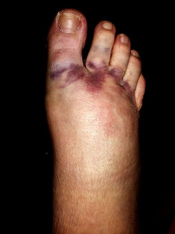 Barefoot Human Body Part One Person Healthcare And Medicine Close-up People Adult Low Section Indoors  Day Bruise Smashed Ouch!! Ouchies Smushed Hurt Hurt Knarly Toes Toenails
