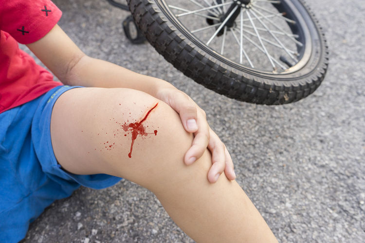 Midsection of child with wounded leg on road