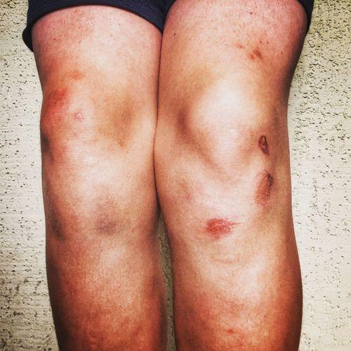 Boys' knees 😂
