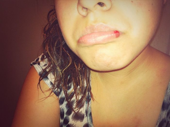 busted my lip :,(