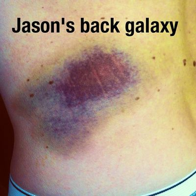 So far away, Hubble can't see it! Bruise Boolow Galaxy Pain