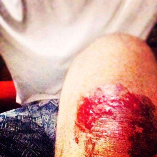 @Injured