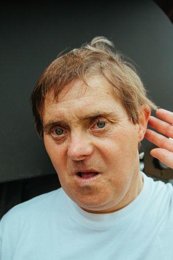 Down syndrome diversity