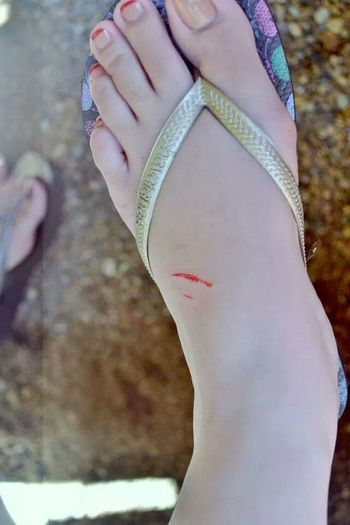 Ouch Cut Blood Beaching It Up