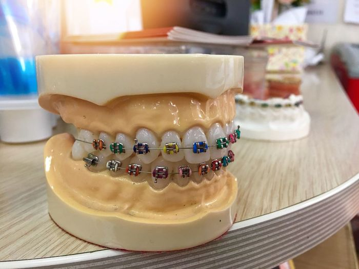Close-up of dentures on table
