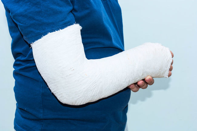 Arm In Cast Broken Bone Arm Blue Broken Arm Close-up Day Human Body Part Human Hand Men One Person Outdoors People Real People Studio Shot Swaddled Arm White Background