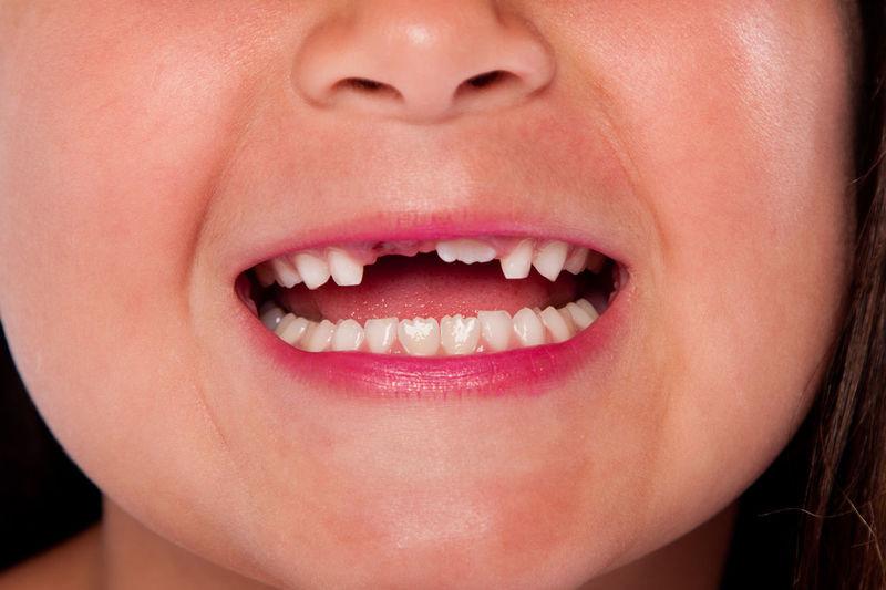 Childhood tooth exchange loss with gap between teeth. Changing Dental Mouth Teething Adult Childhood Close-up Gap Human Lips Human Teeth Milk Teeth Tooth White
