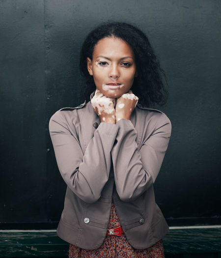 Portrait of woman with vitiligo standing against wall