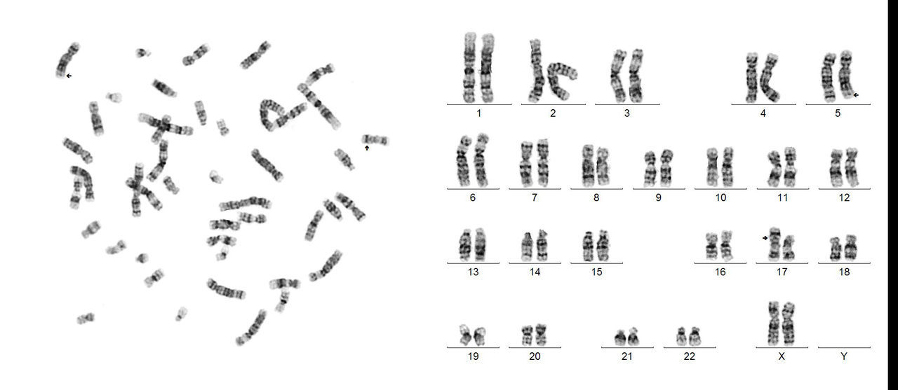 Sorry guys! These are work photos, but the only ones I sell...🤔So bear with me...This one is a female karyotype with an apparently balanced translocation, between chromosomes 5 and 17.🤓 46,XX,t(5;17)(q33;p13) Chromosome Translocation Chromosomes Human Karyotype Karyotype Cytogenetics Science And Technology GTG Banding Scientific Photography Metaphase