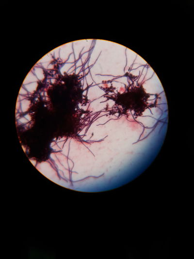 Like a moon with some alien colonies #medicallife #medicalmicrobiology #budding Yeast Like Cells #pseudohyphae #gramstaining 100× Magnification #oil Immersion EyeEm Selects Black Background Science Close-up Microscope Slide Microscope Microbiology Medical Sample Medical Research Magnification