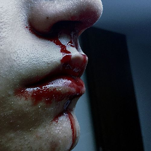 Close-up of person with bleeding nose