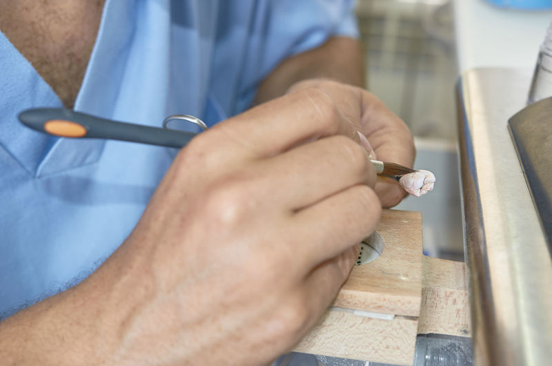 Closeup of dental technician putting ceramic to dental implants in his laboratory. Dental Dentist Dentistry Doctor  Man Prosthodontics Restoration Working Articulador Brush Careful Cavity Ceramic Close-up Denture Implant Inlay Laboratory Metal Professional Prothesis Technician Technologist Teeth