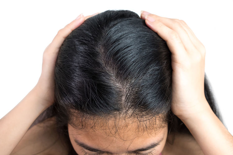 women head with dandruff Caused by the problem of dirty. Or caused by skin disease or Seborrheic Dermatitis. It has white scaly and it will cause itch. Dandruff Headshot Hair Scalp Psoriasis White Background Young Female Seborrhea People person Health Care Skin Dirty Sickness Scaly Discomfort Woman Girl Greasy Through Caucasian Shampoo Medical Dry Problem Stress Backgrounds Itch Black Human Body Part Hand Illness Disease Flakes Medication Trouble Fungus Misfortune Hormonal Secretions Annoying Magnifying  Scratch Rod Tinea Versicolor One Person Studio Shot Human Hair