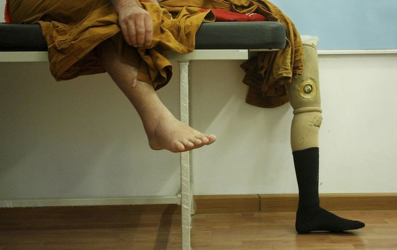 Patient using prosthetic leg