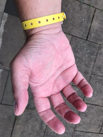 Hand with hospital band Hospitalized Nobody Hand Open Wrist Wrist Band Yellow Patient Hand Low Section Real People One Person Human Body Part Body Part High Angle View Human Limb