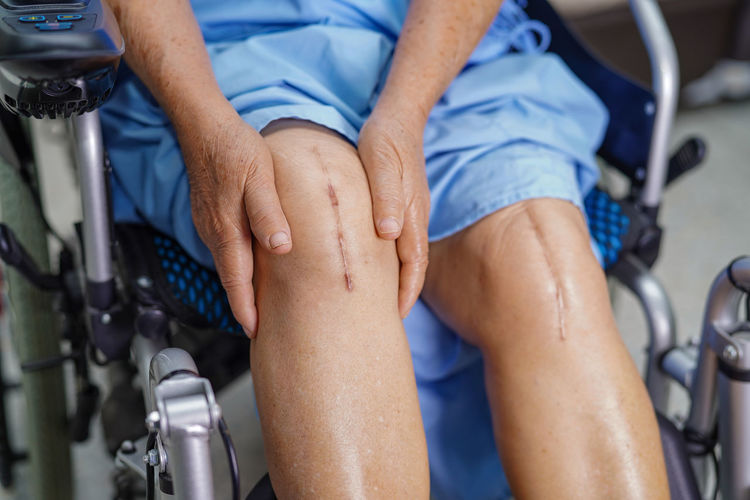 Midsection of patient with scars on knees sitting on wheelchair