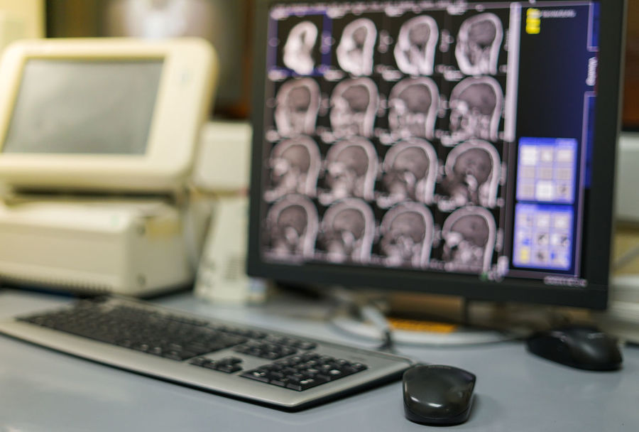 Blur Magnetic Resonance Imaging(MRI) workstation Brain Scans Hand Holding Holding Mouse Hospital Medical Equipment Radiology Department Blur Background Computer Computer Equipment Computer Monitor Connection Desk Healthcare And Medicine Indoors  Keyboard Magnetic Resonance Magnetic Resonance Imaging Mri Mri Brain Mri Room Mri Scan Mri Workplace Technology Workstation X-Ray