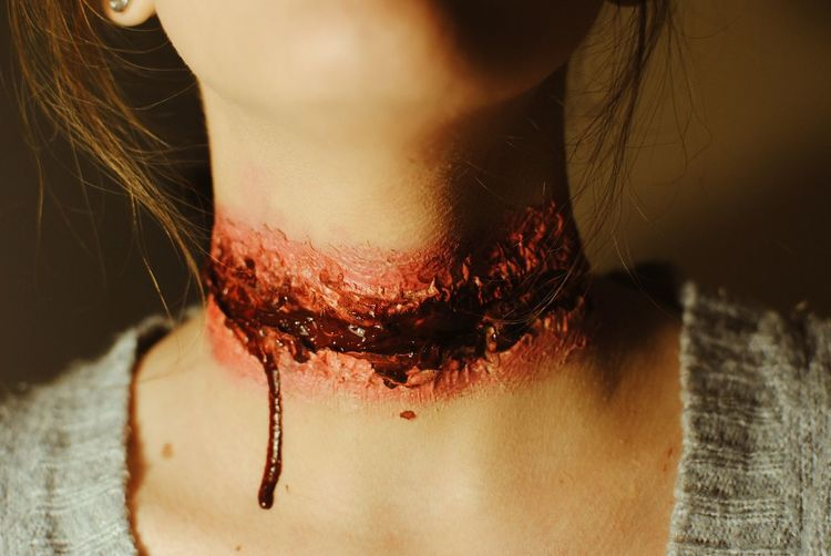 Close-up of wounded woman neck