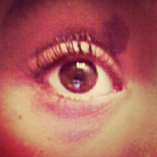 My Eye Lol