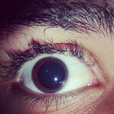 Exame de vista pupilas dilatadas, maneiro