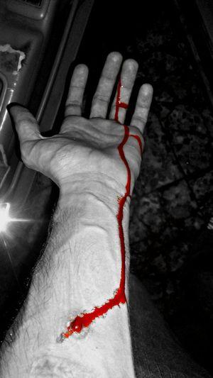 Blackandwhite Schattenspiel  Scars BloodLust