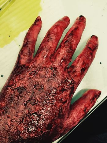 Burn Hand Latex