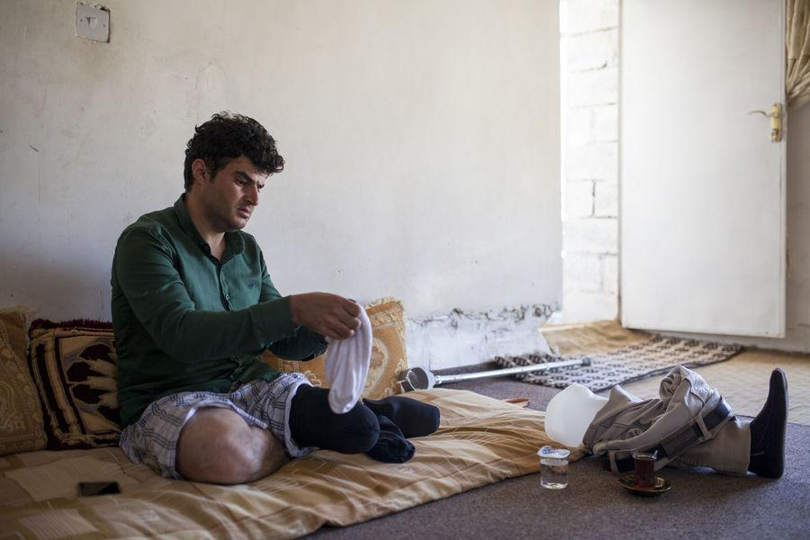 Amputation Consequences Of War Disability  Iraq Kurdistan Leg People Peshmerga The Photojournalist - 2017 EyeEm Awards War