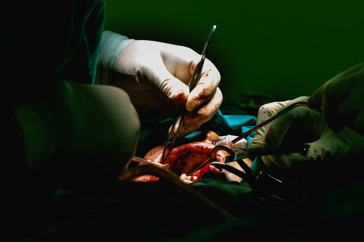 Cropped image of doctors doing surgery of patient in operating room