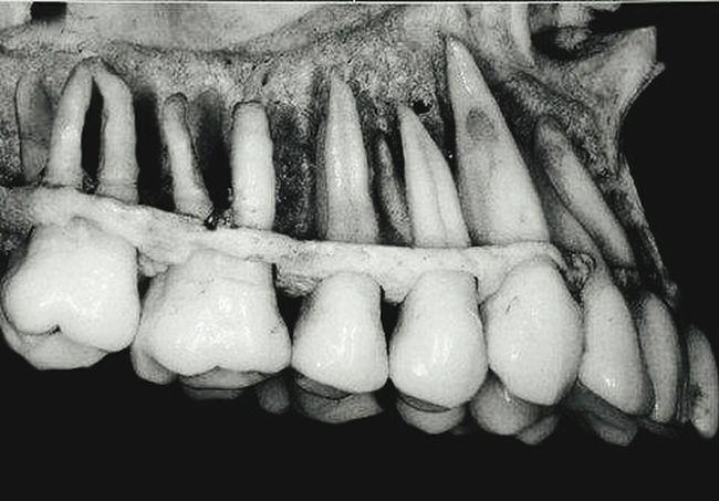 Ilovestomatology!!!! Stomatology Teeth Rtg Dentistry :D 😆😆😆😆😆