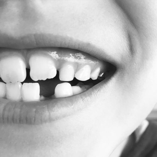 What does the Toothfairy do with teeth? Childhood Memories Teeth Close-up 7-8 Years Growing Happy Everyday