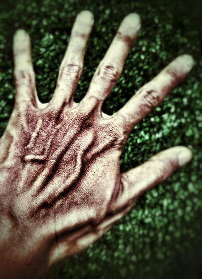 hand colapse