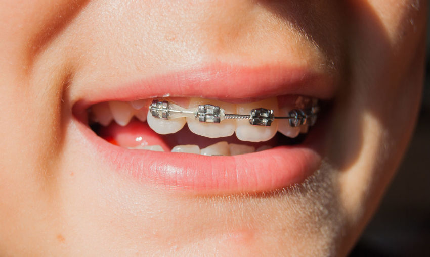 Close-up of woman wearing braces