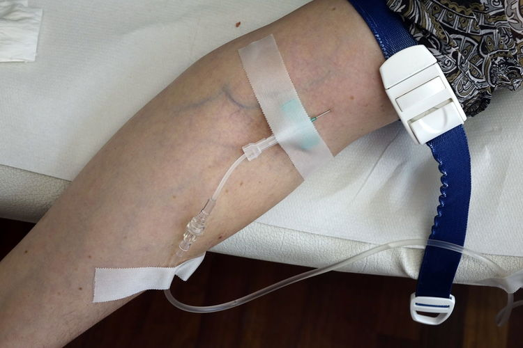 Arm Close-up Day Drip-feeding Healthcare And Medicine High Angle View Indoors  InFusion Injection Needle Intravenous Drip Medical One Person Real People Saline Drip Transfusion Tube Zugang Blut Und Medizin