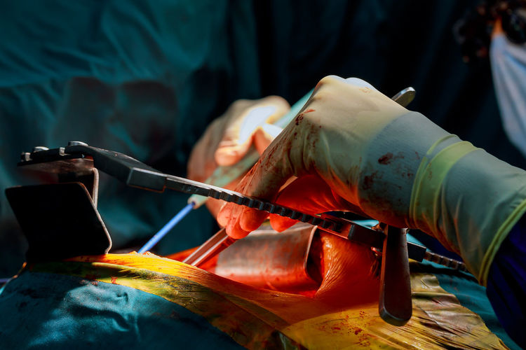 Cropped image of surgeon operating patient