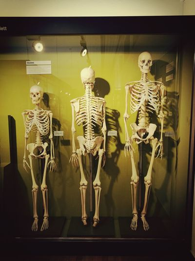 helloo😂😂 bakmayın bakmayın, çok ayıp!!😁😁 Don't See Us Hello Guys ✌ What Are You Doing?😂 Human Skull Biology Human Bone Skeleton Museum Research Human Skeleton