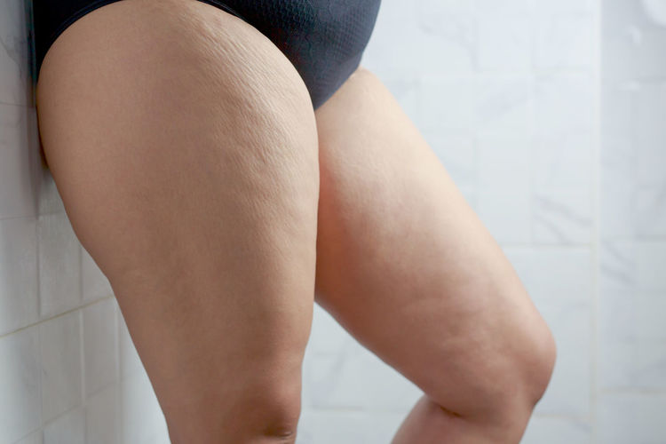 Low section of woman legs