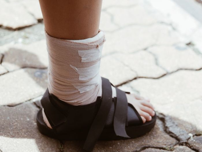 Low Section Of Woman With Elastic Bandage Standing On Footpath