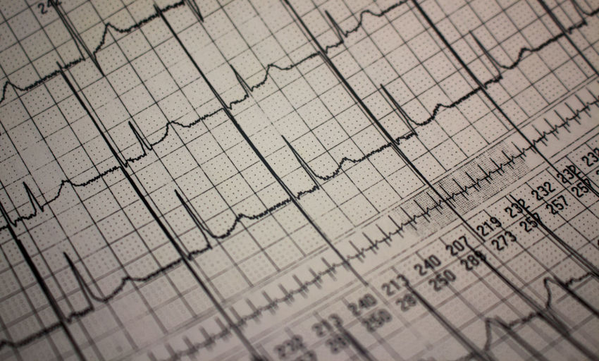 Electrocardiogram Business Cardio Cardiology Chart Close-up Corporate Business Data Day Ekg Finance Financial Figures Full Frame Graph Indoors  No People Pacemaker Paper Report Research Stock Market And Exchange